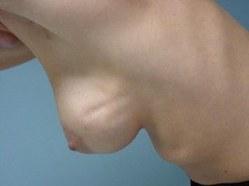 Bras for breast cancer survivors